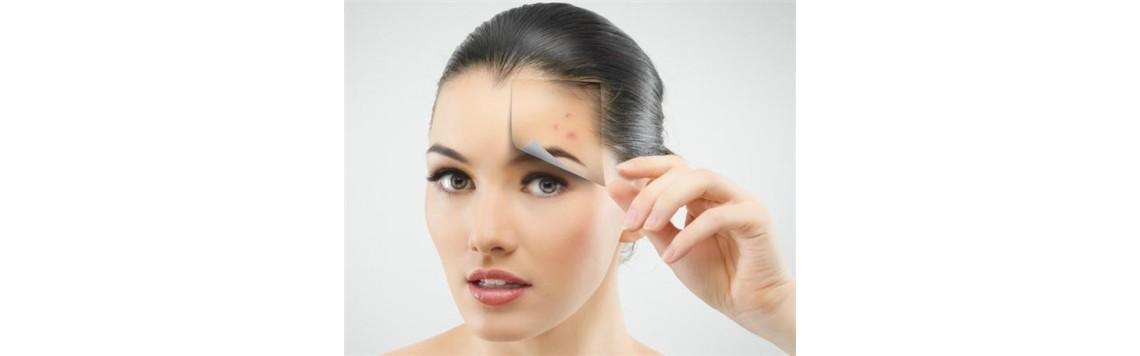 oily and acne-prone