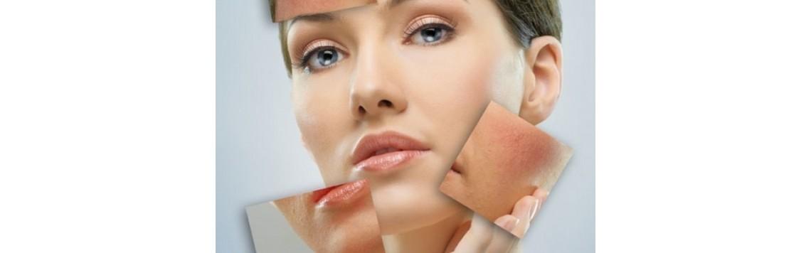 skóra naczynkowa
